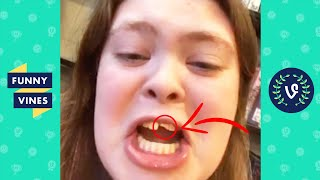 """SHE CHIPPED HER TOOTH! 😂"" 