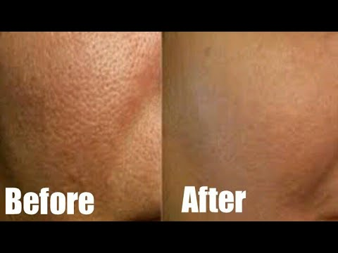 Minimize Large Pores In 3 Days/ Acne Scars And Blemishes Cure