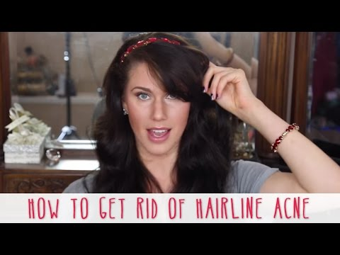 Hairline Acne and How to Get Rid of It | Cassandra Bankson