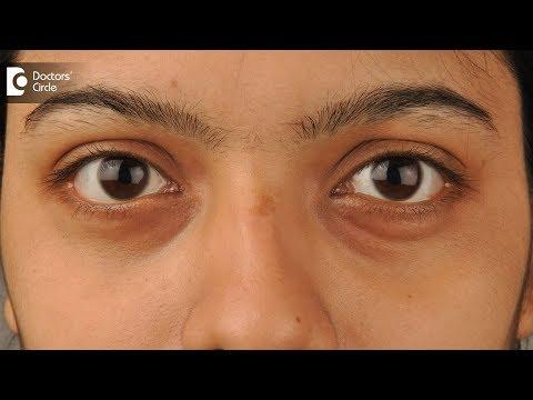 5 Natural remedies to remove dark circles - Dr. Mini Nair