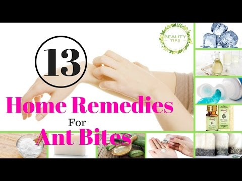 Top 13 Home Remedies For Ant Bites | BEAUTY TIPS