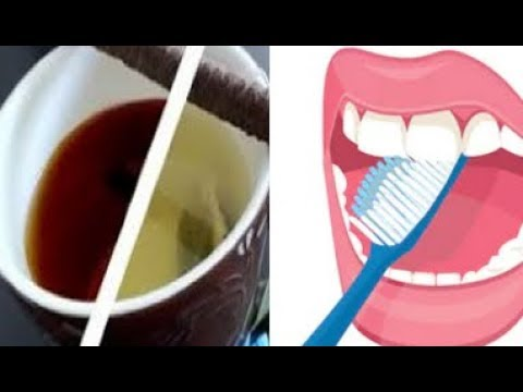 Common Foods That Strengthen Teeth and Prevent Enamel Erosion