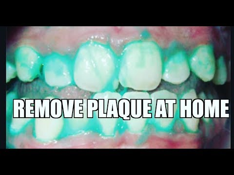 Clean plaque off your teeth