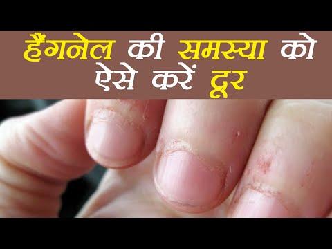 Hangnail की समस्या दूर करने के उपाय, How to Get Rid of Peeling Cuticles around nails | Boldsky