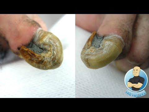 100% REAL UNBELIEVABLE CURVED TOENAIL BEING TRIMMED