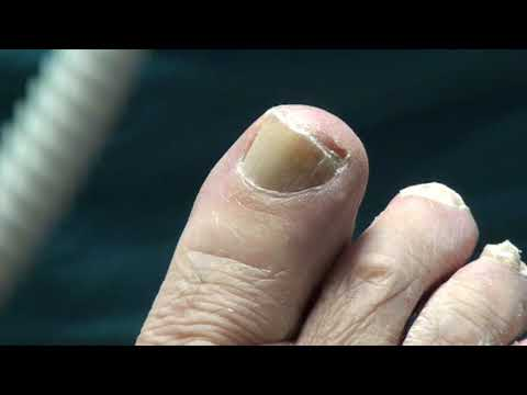 Diabetic Toenail Trimming on Patient in Podiatry office