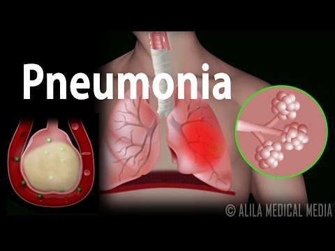 Pneumonia, Animation