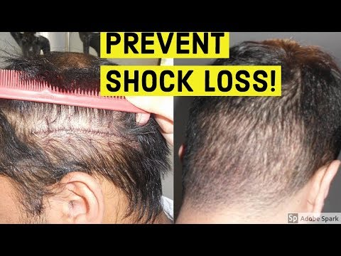 PREVENT SHOCK LOSS AFTER HAIR TRANSPLANT!