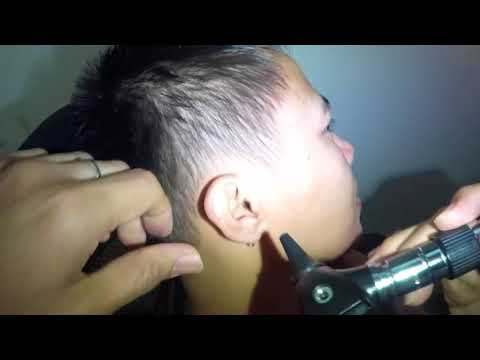 Cotton Bud Removal Stuck in the Ear after Cleaning the Ear with a Q-tip