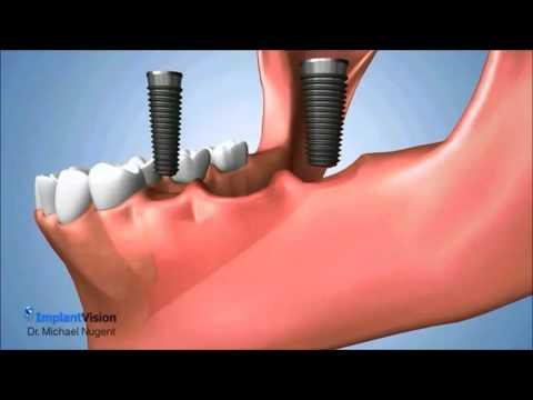 Several Teeth Missing Treatment Options