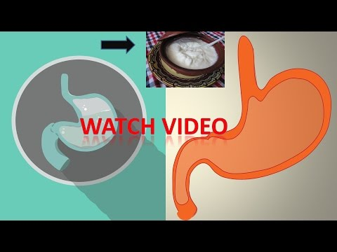 The Best Treatment for Gastritis at Home. This will help you like no other remedy| With 100% Proof