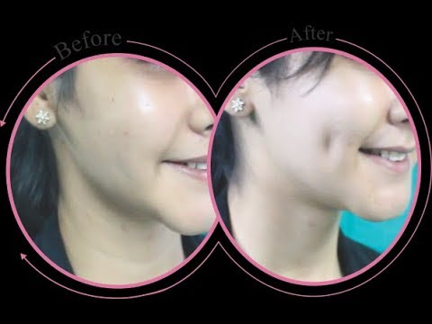3 Ways to Get Dimples Naturally