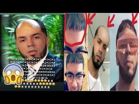 Xxx Mp4 Anuel Aa ADMITE Ser CALVO Ceky Viciny Hace Pasar Veguenza A Paramba 3gp Sex