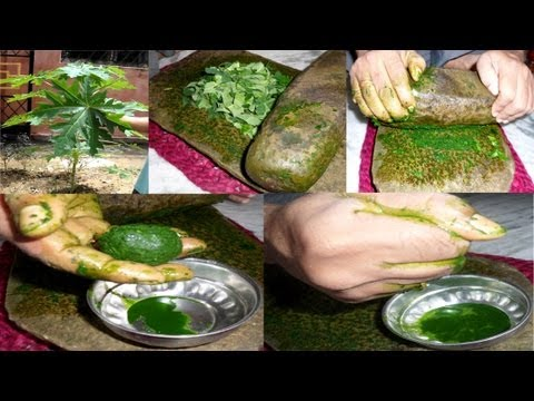 Papaya leaf juice for curing dengue fever - डेंगू बुखार के इलाज के लिए पपीता के पत्ते का रस