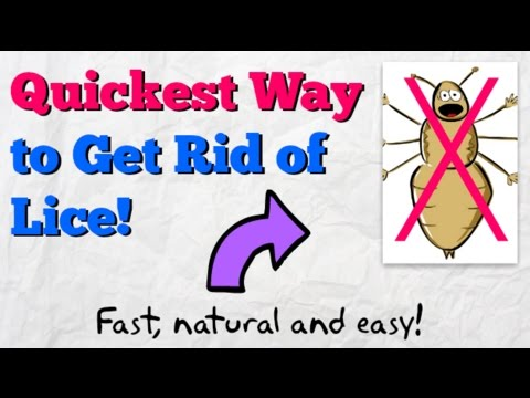 How to Get Rid of Lice FAST! | Home Remedy to Kill Head Lice Naturally