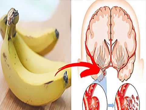 This Is What Happens To Your Brain And Heart, When You Eat Banana Three Times A Day
