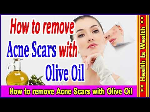 मुहांसे का दागो से छुटकारा - घरेलु इलाज - How to remove Acne Scars with Olive Oil