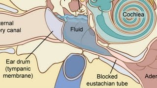 How to Treat Fluid in the Ear | Ear Problems