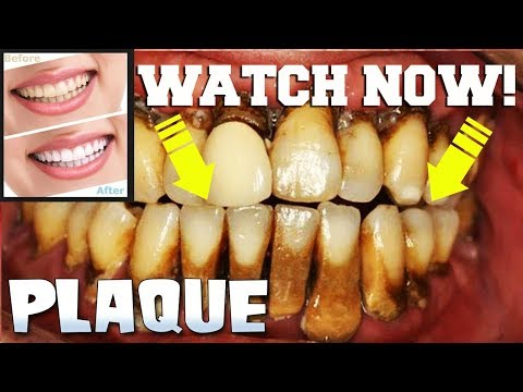 How to Remove Plaque or Tartar from your Teeth!