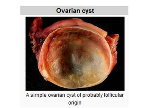 What is an Ovarian Cyst Symptoms