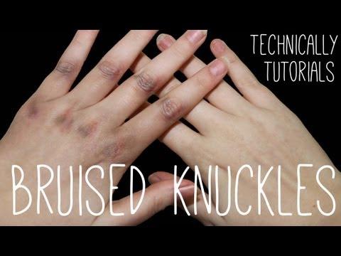 Bruised Knuckles | Technically Tutorials