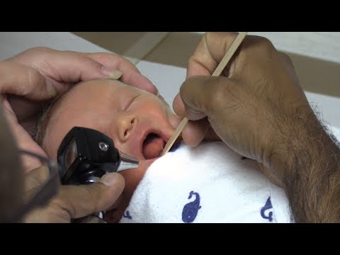 Tongue Tie Procedure With Pain Control Making Breastfeeding Better