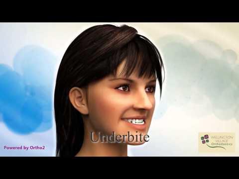 Intro Part 2 - Common Malocclusions - Wellington Village Orthodontics