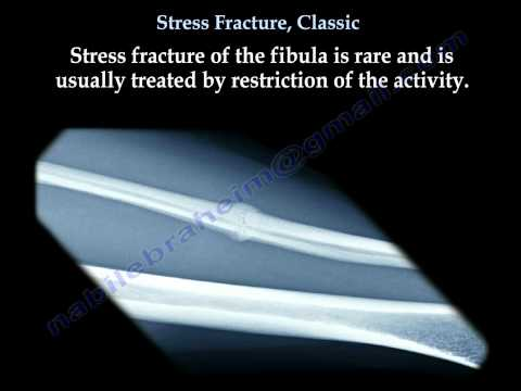 Stress Fracture, Classic - Everything You Need To Know - Dr. Nabil Ebraheim