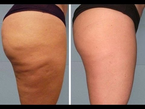 How to Get Rid of Cellulite on Thighs/Legs Naturally