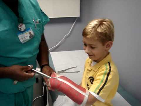 Removing an Arm Cast -  Nicklaus Children's Hospital Orthopaedics Department