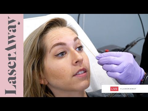 Xeomin Treatment LIVE SESSION at LaserAway 🔴