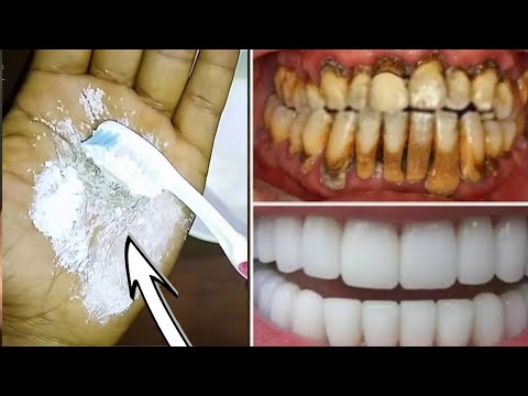 Teeth whitening at home / teeth whitening/ teeth whitening treatment