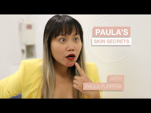 Retinoid Dermatitis With PA, Paula Purpera