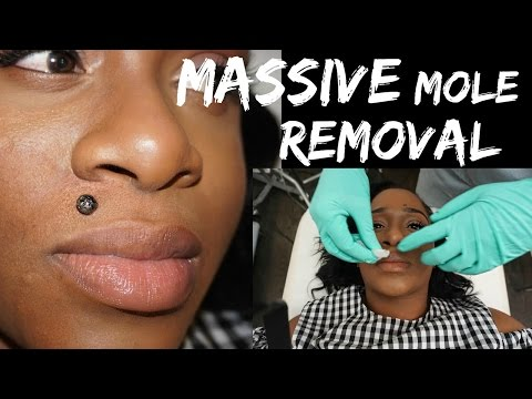 Massive Mole Removal| My Radiosurgery Experience with LaserTouchAesthetics 2017