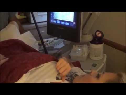 7 Week Pregnancy Ultrasound | Singleton or twins? Or more?