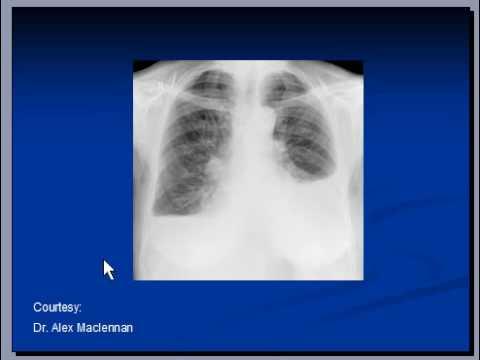 Chest x-ray -- Pleural effusion, Pneumonia