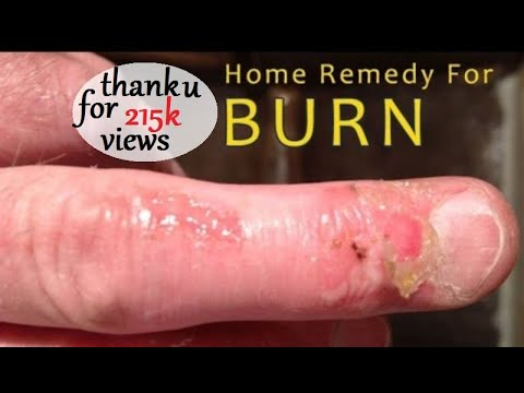Home Remedy For Burns - First Aid and Home Remedies to Treat Burns