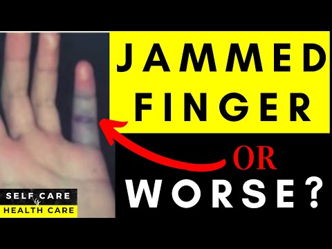 Physical Therapy Video: Jammed finger or something worse?