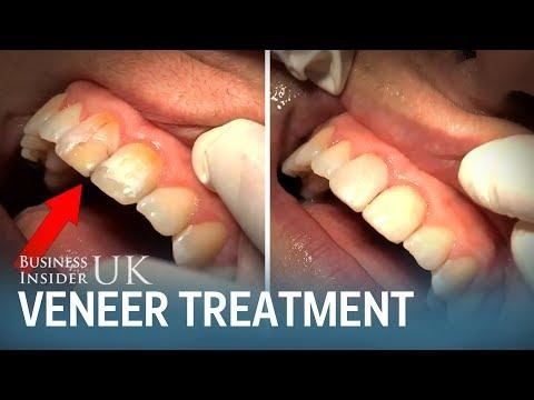 A dentist made a cheap alternative to porcelain veneers