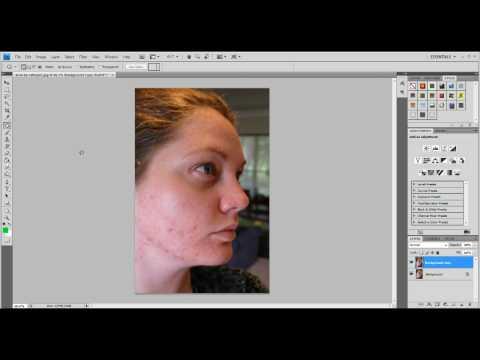 CS4 photoshop tutorial - Removing Acne