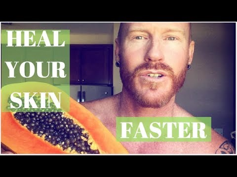 How To Speed Up The Healing Process (Eczema , Dermatitis)