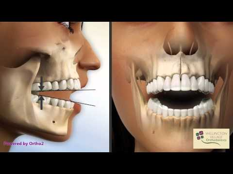 Open Bite - Diagnostic - Wellington Village Orthodontics