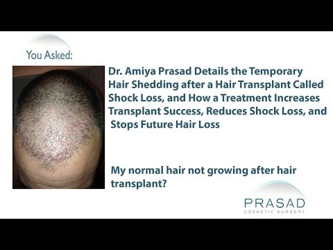The Temporary Cause of Hair Shedding after a Hair Transplant and How to Stop it and Future Hair Loss