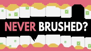 Download What Would Happen If You Never Brushed Your Teeth? Video