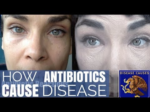 How to Deal With Antibiotic Reactions - Restore Gut After Taking Antibiotics