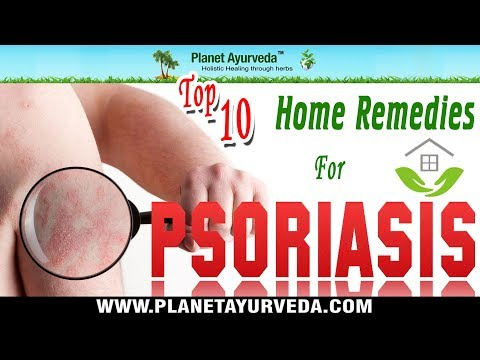 Top 10 Home Remedies for Psoriasis   Natural Treatment