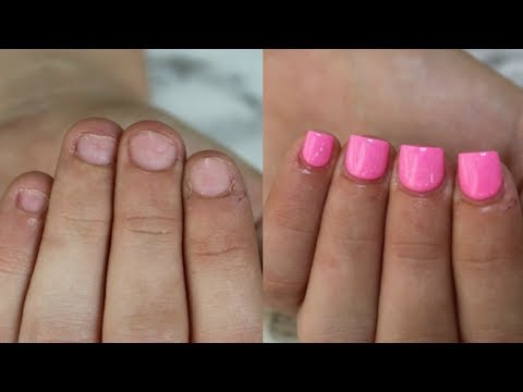 HOW TO: Fix Short Bitten Nails with Acrylic