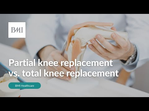 Partial knee replacement vs. total knee replacement | BMI Healthcare