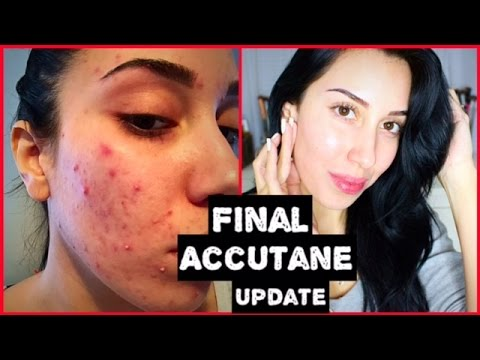 How I Got Rid Of My Acne | IM DONE!!! Month 6 Update & Side effects