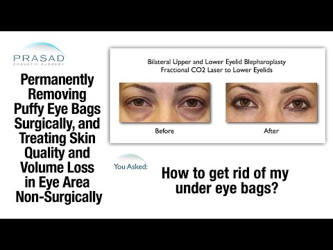 Getting Rid of Eye Bags and Improving the Under Eye Skin that Can't be Hidden by Makeup